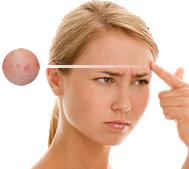 laser cicatrice acné remboursement